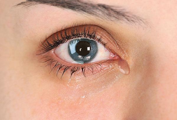 Slzící oči