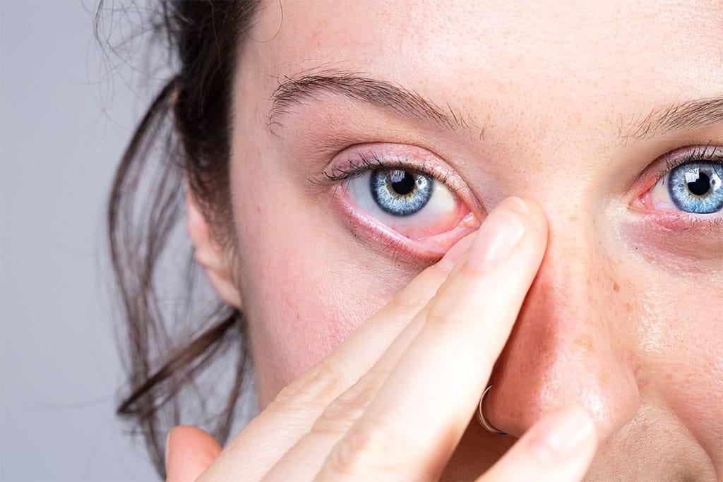 Image Woman rubs one eye