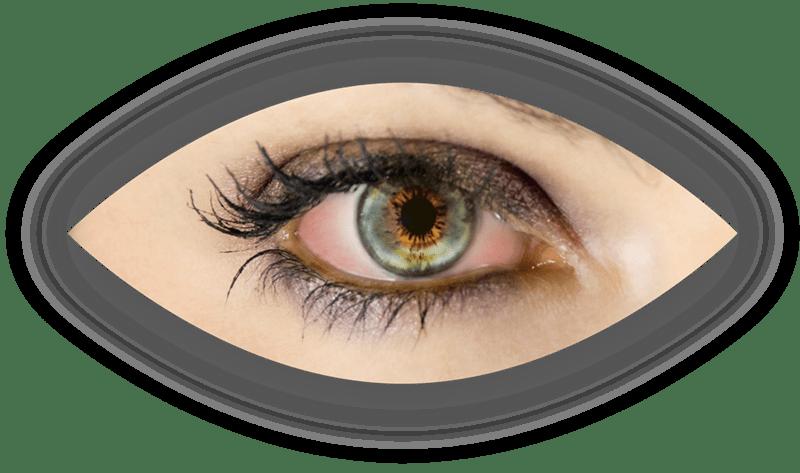 Obrázek Suché oko