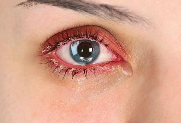 Slzící oko, zarudlé oči a okraje víček, ospalky na víčkách